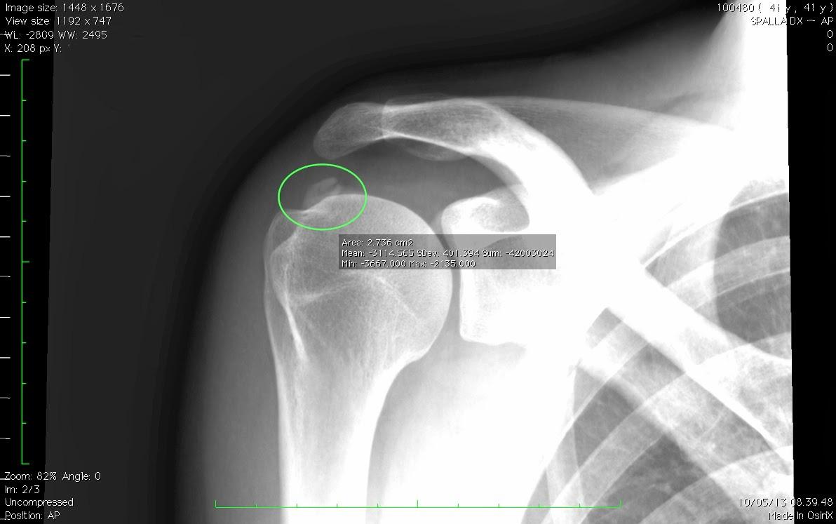 trattamento-ecoguidato-delle-tendinopatie-calcifiche-della-spalla c983ce54c0b0